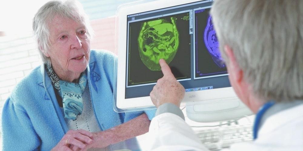 диагноз болезнь Альцгеймера