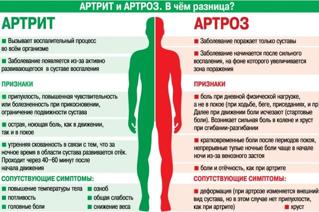 артрит и артроз отличия