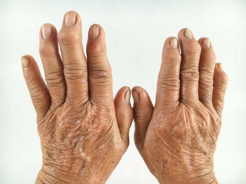 артрит у бабушки